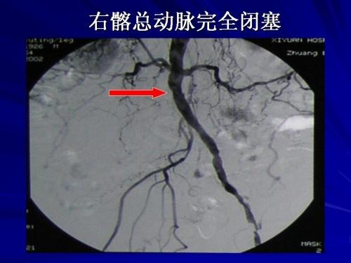 下肢动脉硬化闭塞症_下肢动脉硬化闭塞症介入治疗