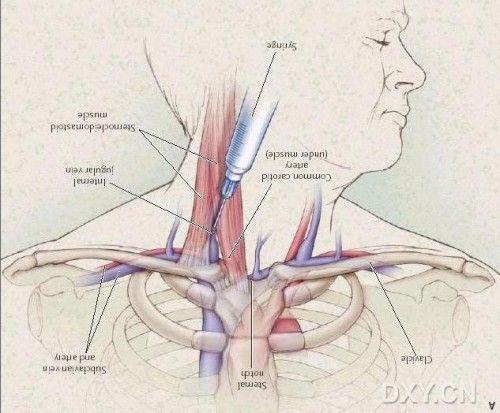 两个静脉穿刺解剖图